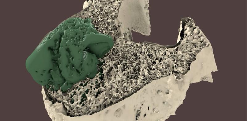 Palabos - Vertebroplasty